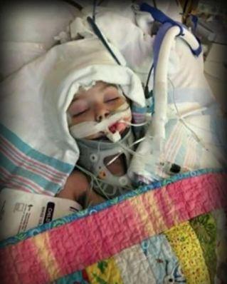 Averylee Hobbs intubated in hospital