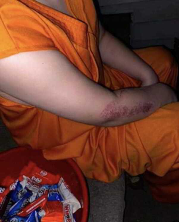 Corey Micciolo injury arm rug burn