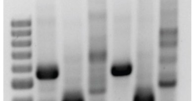 Contamination by PCR