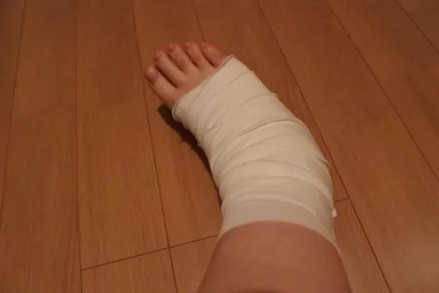 足首の捻挫イメージ画像