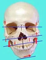 頭蓋骨 歪み 画像