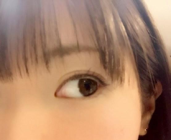 眼球(白目)の腫れの原因は?病気?痛みがある場合は?