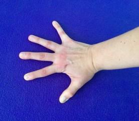 Hand mit gespreizten Fingern - richtige Position beim Stützen.