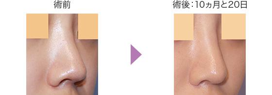 鼻翼軟骨形成+耳介軟骨移植の症例