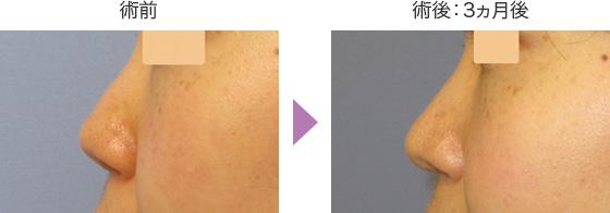 鼻尖形成術の症例 横