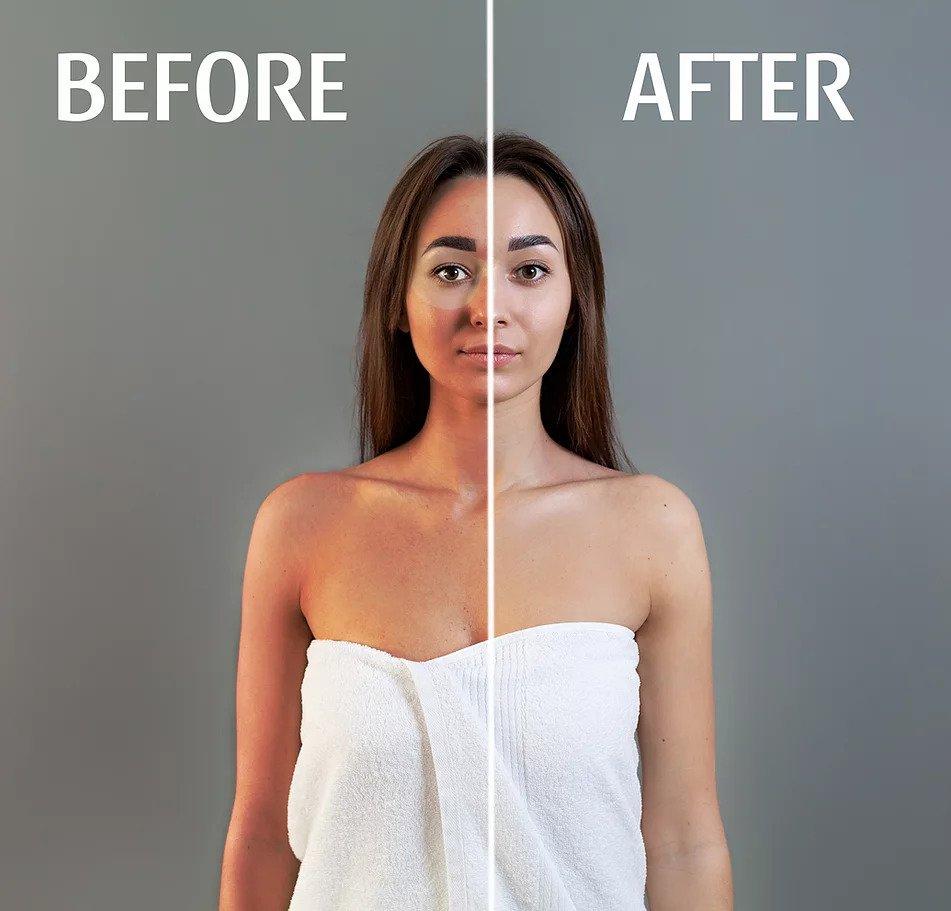 How Sunburn Drink works