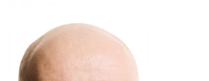 hovedbundsmassage mod hårtab
