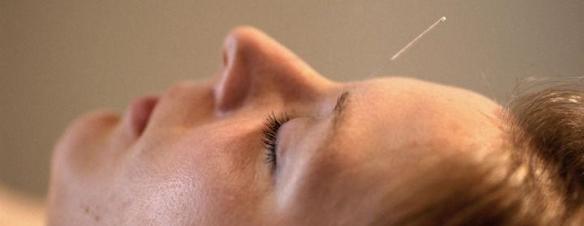 akupunkturtilpasset