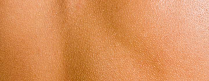 sundt for huden