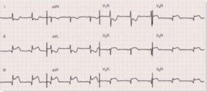 EKG fra en 23-årig mand uden risikofaktorer til iskæmisk hjertesygdom