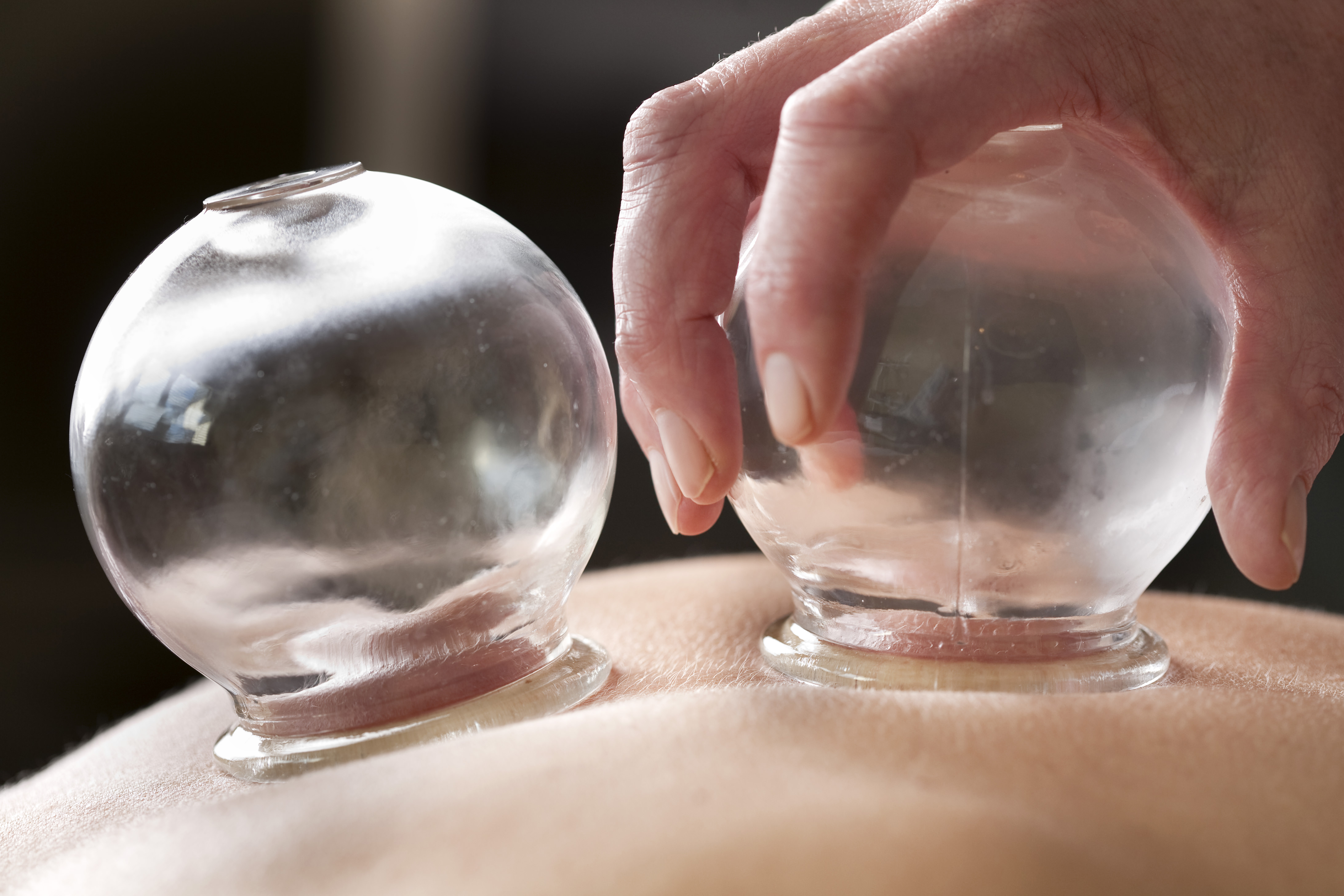 Chinese traditional medicine cupping therapy.