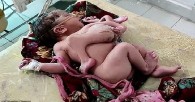 Shocking: Baby born with four legs, three hands in India