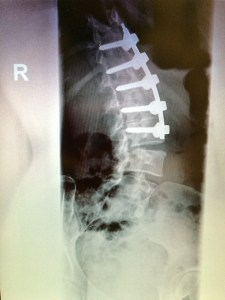 X-ray of the lumbar region of my spine, 2015