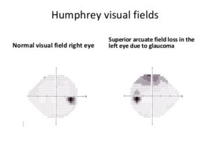 visual-field-loss