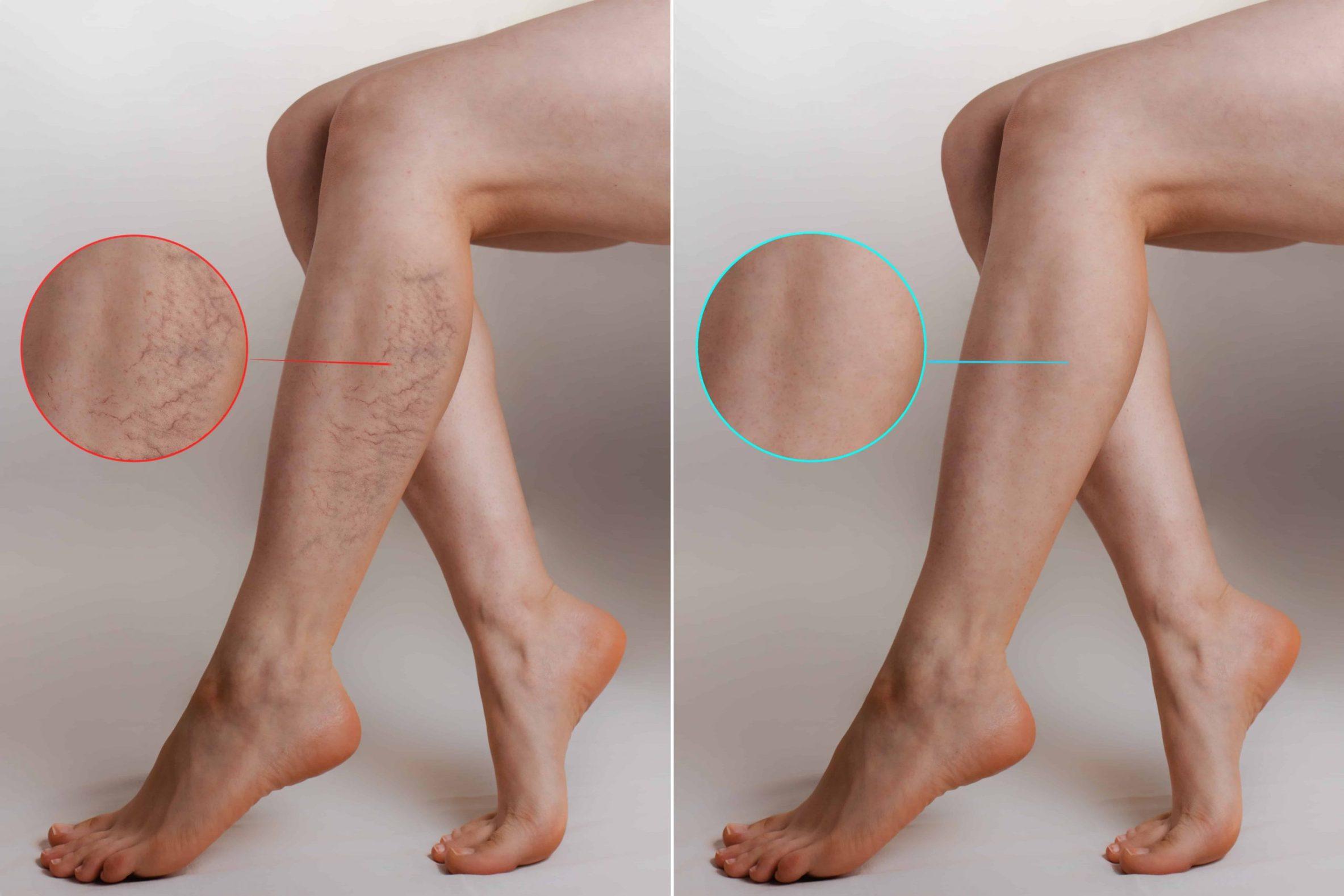 plăci în timpul revizuirilor cu picioarele varicoase