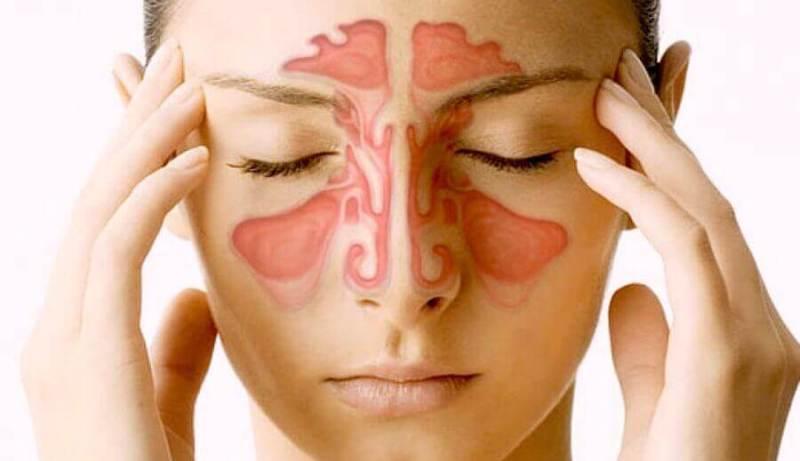 sinusuri, dureri de cap, femeie cu sinuzita,