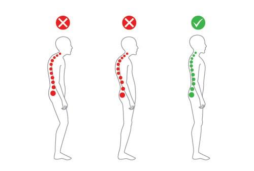 postura corecta in picioare, durerea de spate,