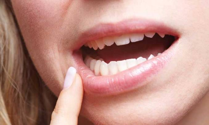 What are the Essential Oils for Mouth Ulcers: How to Use Them