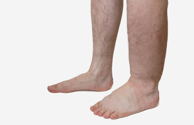 3 Best Essential Oils for Edema: With Recipes for Edema