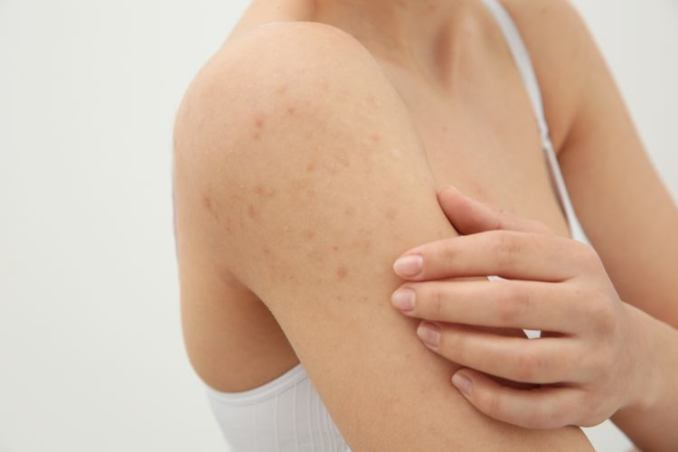 10 Best Body Washes for Keratosis Pilaris Review in 2020