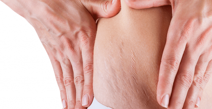 The Pros and Cons of Using Fractional Laser for Stretch Marks