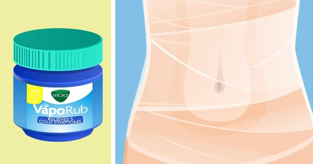Can you use Vicks VapoRub for Stretch Marks? 2021 Update