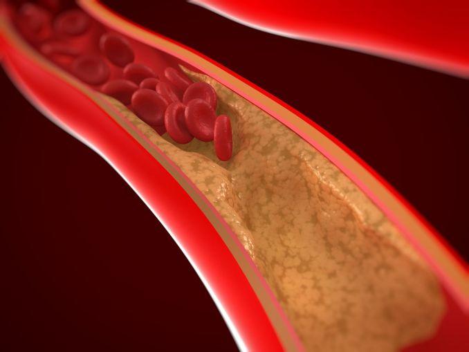 Types of Arteries