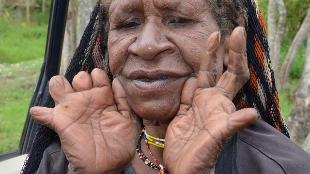 Batı Yeni Gine'deki Dani insanlarının garip bir adeti vardır. Ölen birinin ardından üzüldüklerinde parmaklarından bir boğumu da feda ederler.