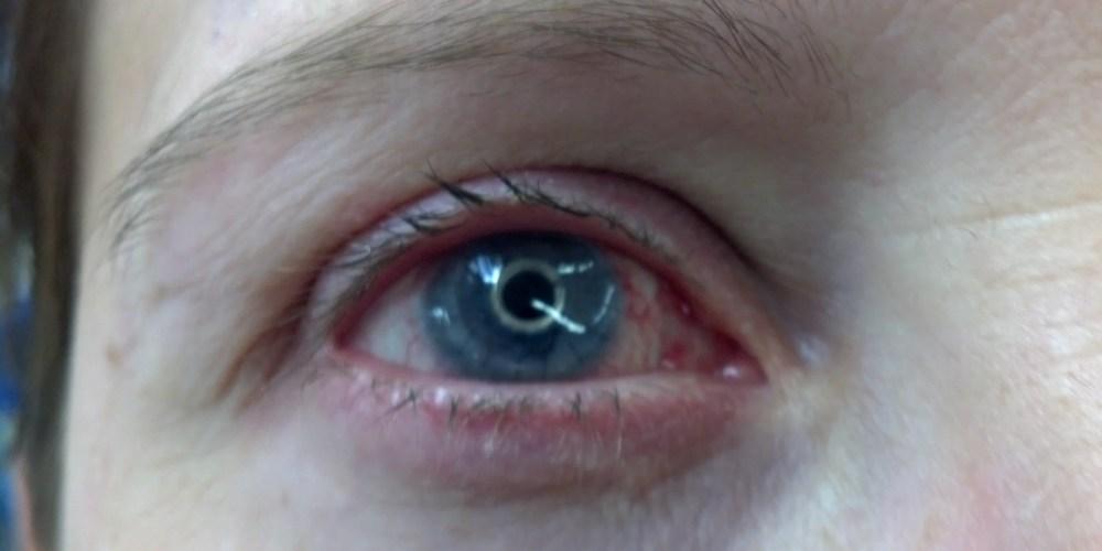 protthetic-eye