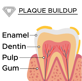 Plaque Buildup on the surface of the enamel
