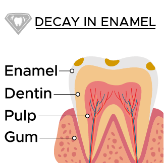 Decay spreads into the enamel of the tooth
