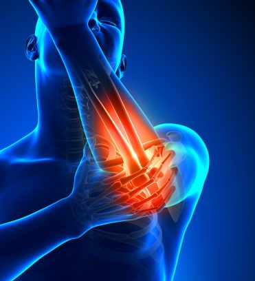lateral epicondylitis. Rehabilitation exercises. Sports injuries treatment. injury prevention.