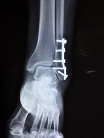 osso-partido
