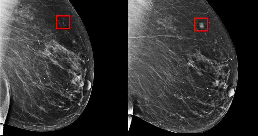 MIT cria algoritmo que prevê cancro da mama