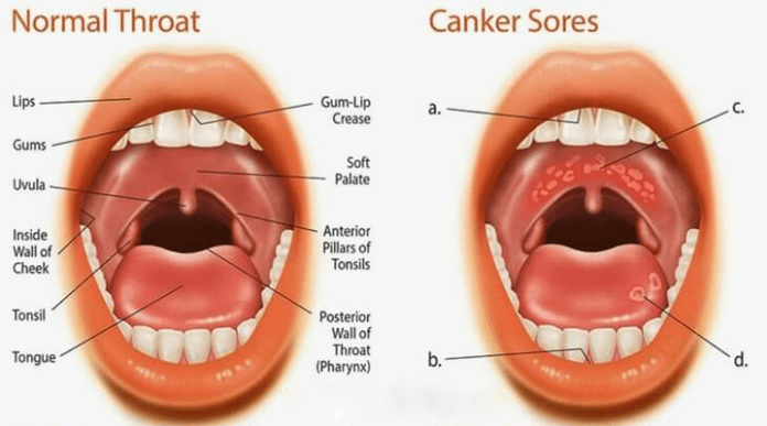 treat canker sore naturally