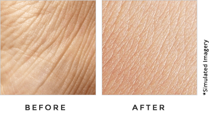 SKN Renew Before and After