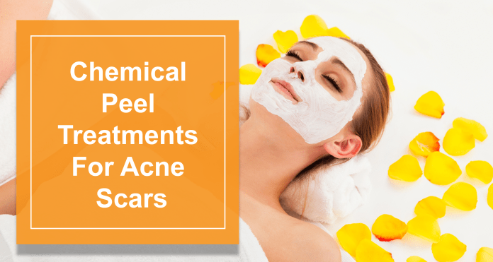 Types Of Chemical Peel Treatments For Acne Scars