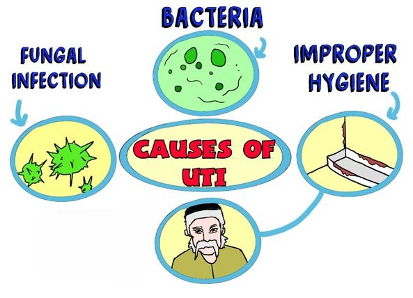 Causes of Urinary Infection