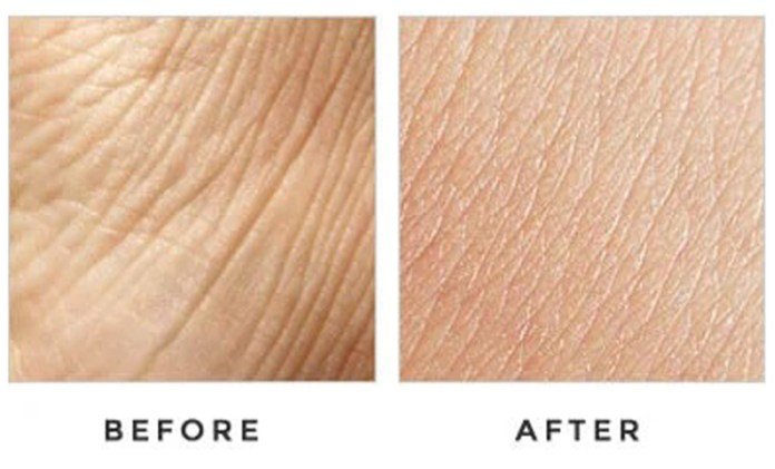 Sensa-Skin-System-result