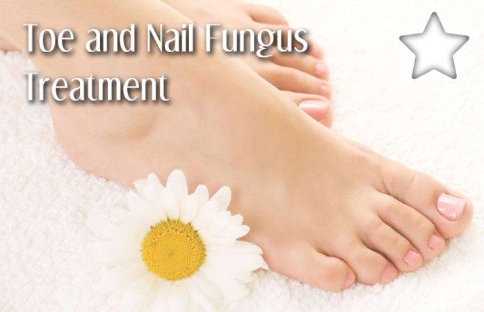 ToeNail Fungus Treatments Review - Best Healthy Feet Creams?