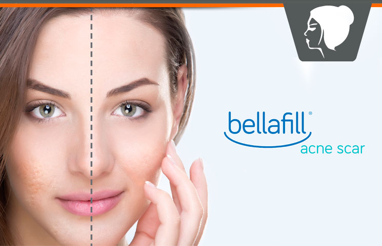 Bellafill Acne Scars Treatment Review - Fillers For Facial Wrinkles & Blemishes?
