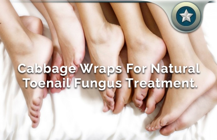 Cabbage Wraps Natural Toenail Fungus Treatment Review - Worth It?