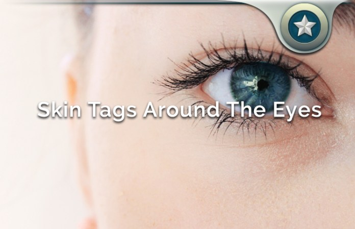 Skin Tags Around The Eyes