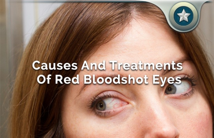 Red Bloodshot Eyes
