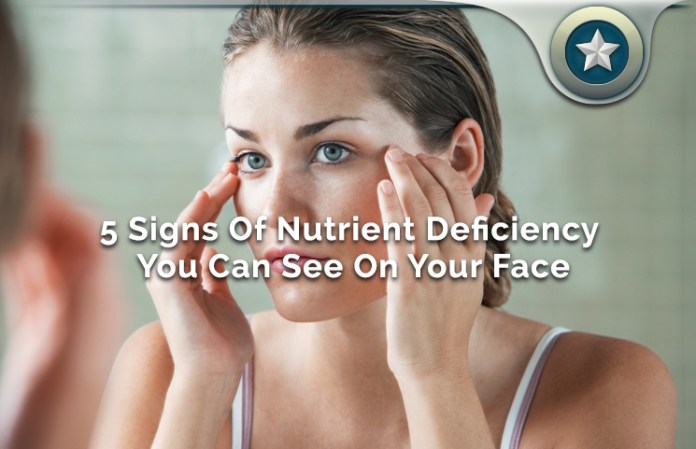 5 Signs Of Nutrient Deficiency You Can See On Your Face