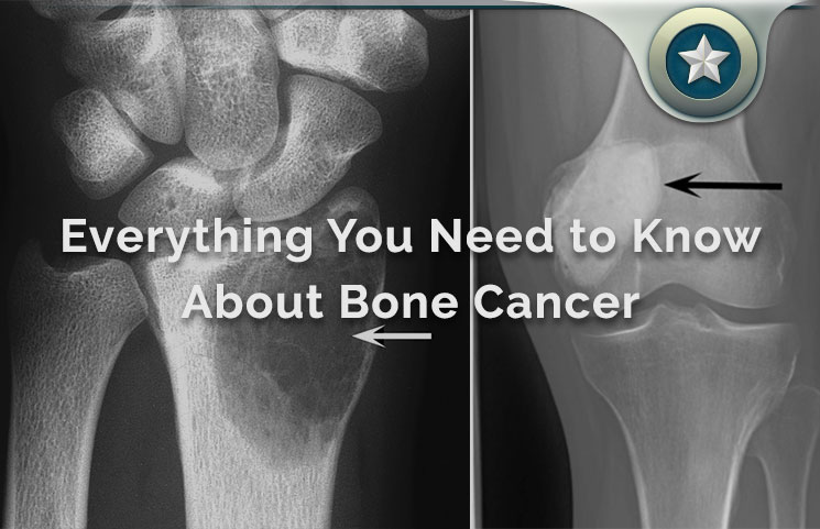 Bone Cancer Review Primary Types Tumors Causes
