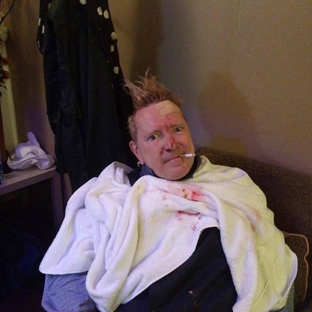Jednou pankáč, vždycky pankáč! Takhle trefili Johnyho Rottena ze Sex Pistols na podiu do hlavy!
