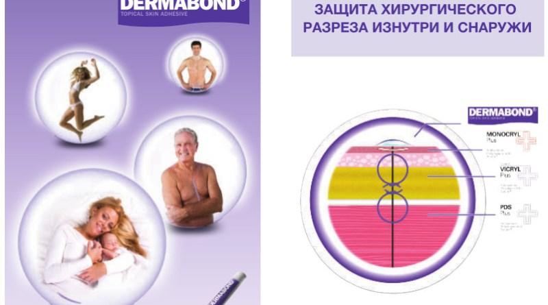 Кожный клей Dermabond Позволяет пациенту принять душ сразу по окончании операции