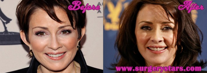 patricia heaton plastic surgery - before and after shoots
