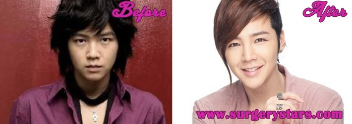 jang geun suk plastic surgery before & after pic